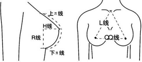 上海做隆胸手术风险存在吗,大不大