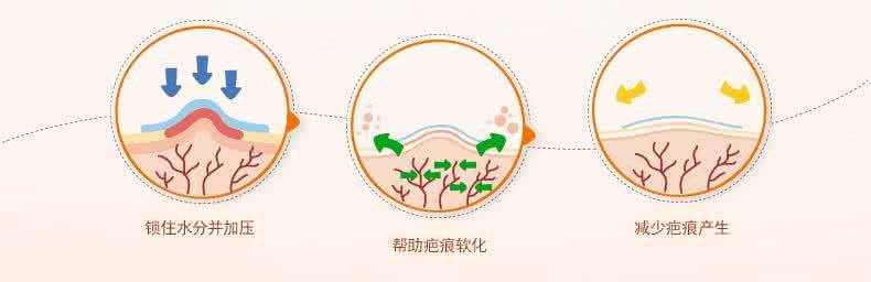 上海一般做去疤手术多少钱