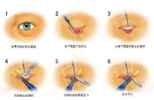 祛眼袋整形上海哪家医院做得效果好