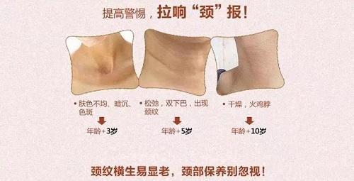 上海美莱鱼尾纹和法令纹之外,颈纹也会暴露你的年龄