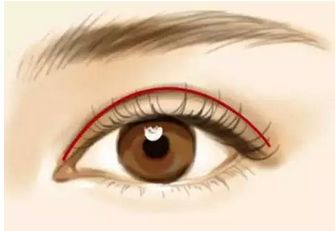 做完双眼皮手术后恢复期是多久