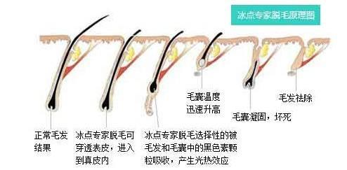 上海脱毛,冰点脱毛能维持几年