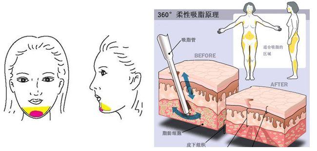 上海做吸脂减肥有哪些副作用
