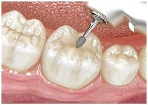 在做完补牙后注意事项有哪些