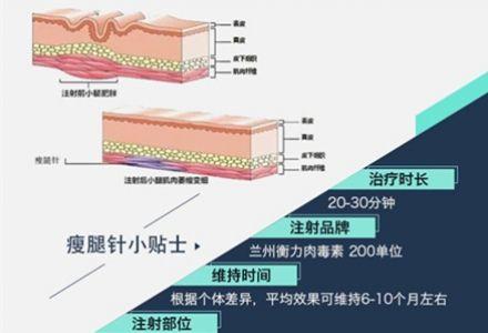 上海注射瘦腿针反弹后会更粗吗