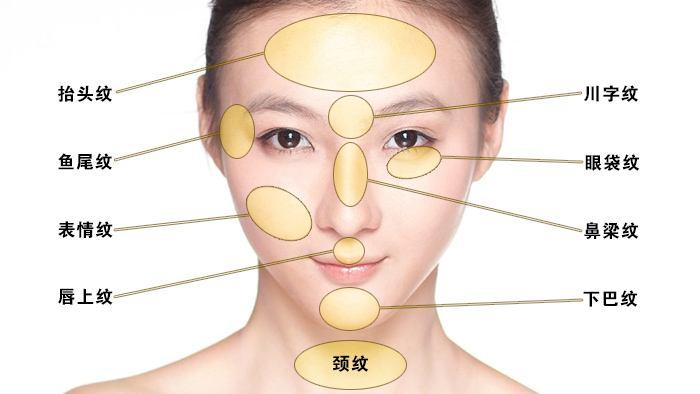 上海整形医院去除皱纹面部提拉多少钱