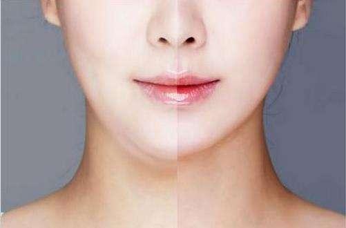 面部吸脂上海做的效果怎么样