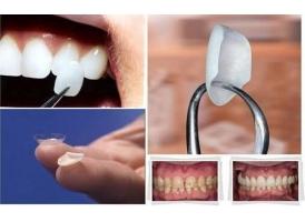 牙齿怎么修复,哪家医院修复的好