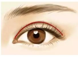 双眼皮割的太深能修复吗