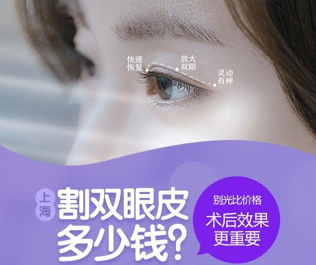上海开双眼皮割双眼皮多少钱
