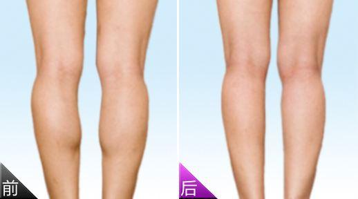 吸脂和注射瘦腿针哪个更好