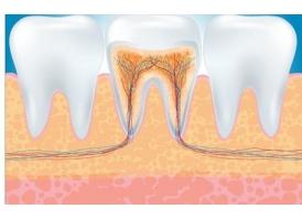 牙齿断裂怎么修复
