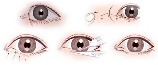 开内眼角手术痛不痛