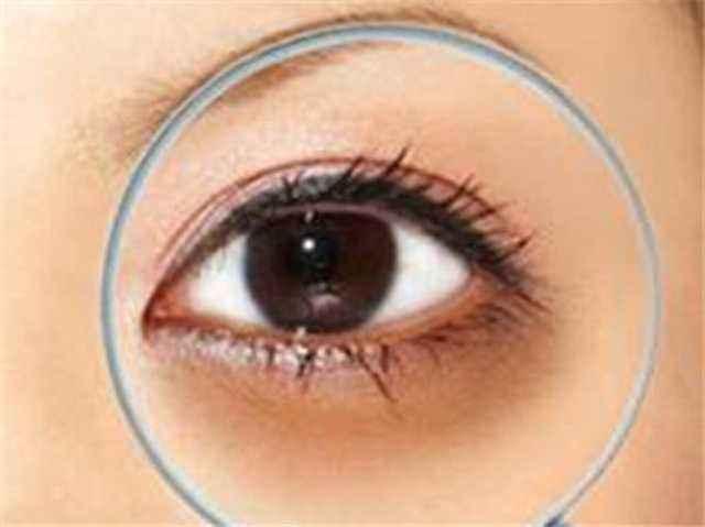 黑眼圈怎么样消除,上海做激光去黑眼圈多少钱