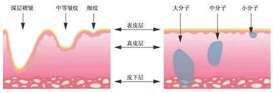 玻尿酸有什么美容作用?玻尿酸填充能维持多久?