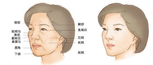 上海脂肪移植填充费用高吗