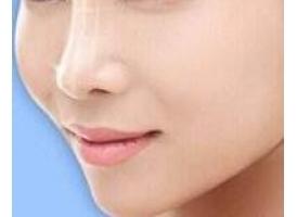 韩式小翘鼻韩式隆鼻价格需要多少钱