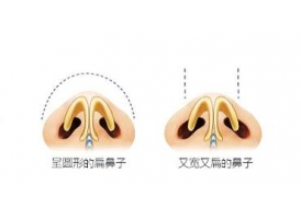 做鼻头缩小手术会不会影响呼吸呢