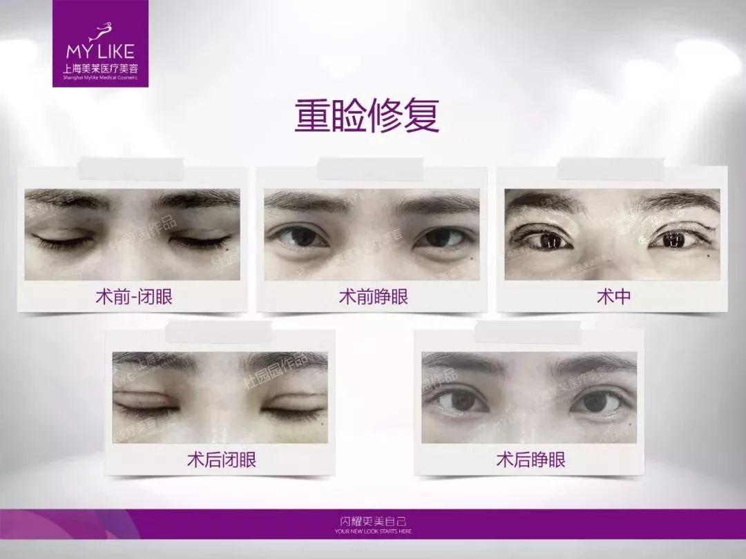 双眼皮做失败了可以修复吗