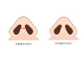 上海做综合鼻整形要多少钱