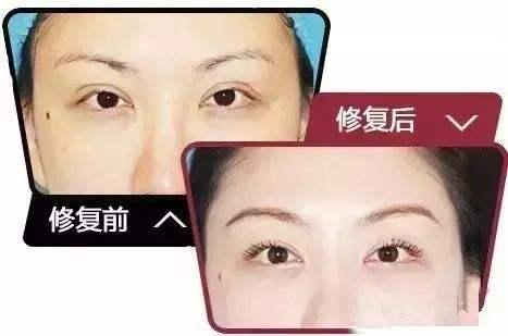 上海做双眼皮失败如何修复