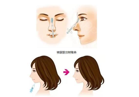 鼻子打玻尿酸多少钱