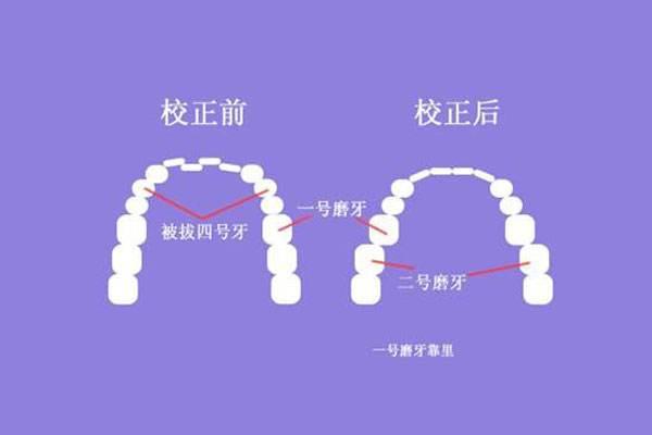 上海做口腔牙齿矫正价格多少钱