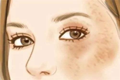 眼角边长斑怎么回事