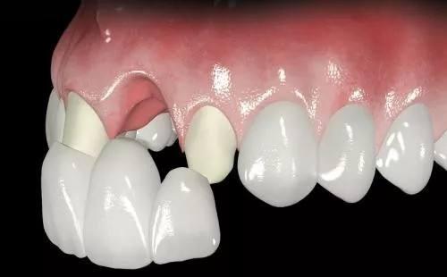 什么是牙齿贴面