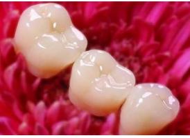 上海美容冠牙齿矫正要多少钱