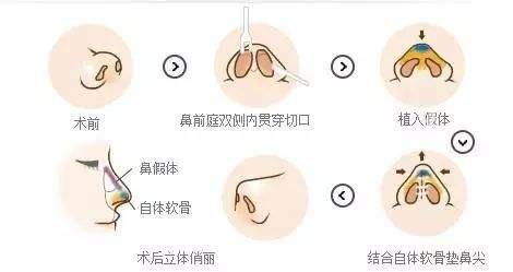 上海做自体软骨隆鼻术要多少钱