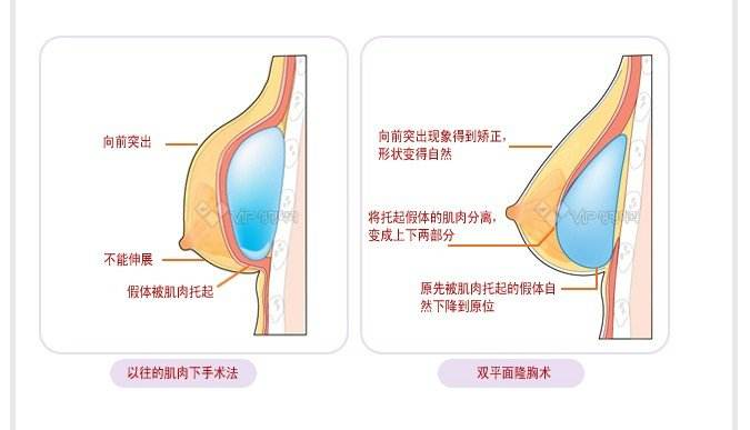 做自体脂肪隆胸与假体隆胸有什么优缺点吗