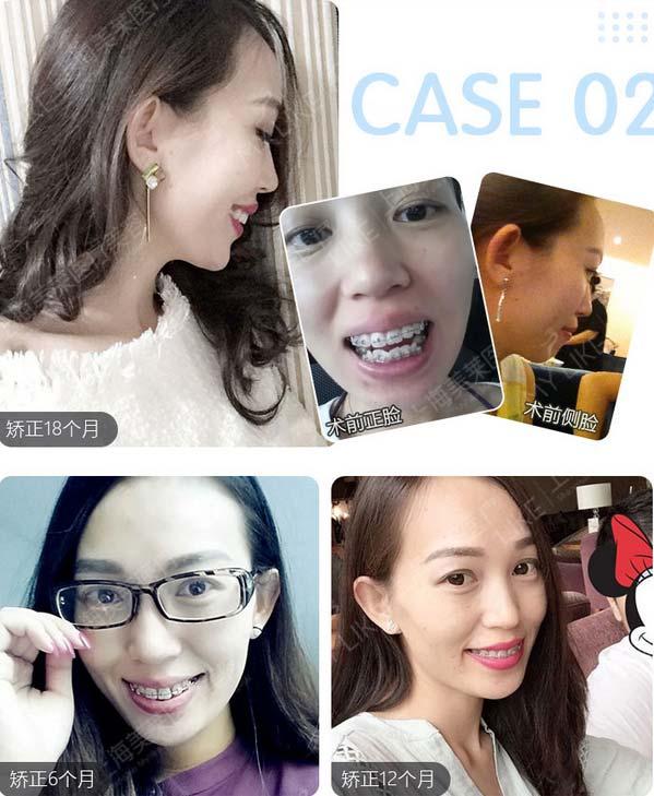 在上海做一个矫正牙齿大概多少钱