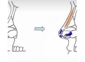 做自体软骨隆鼻和假体隆鼻有什么区别