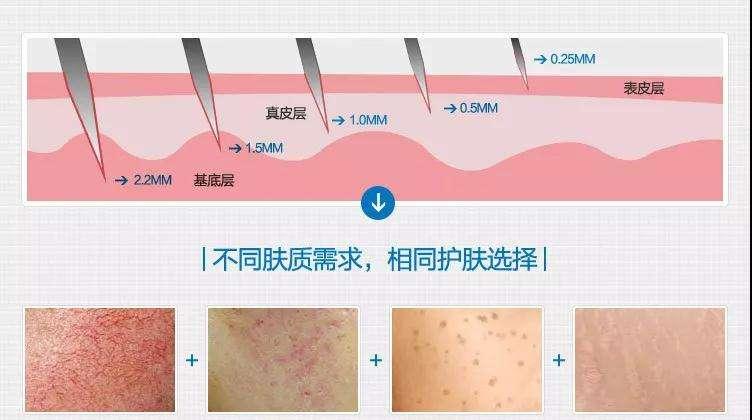长痘痘怎么办,上海美莱如何治疗痘痘