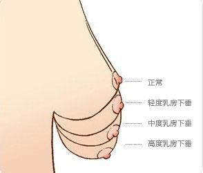 上海隆胸能矫正胸部下垂吗
