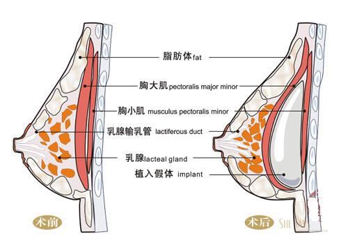 上海做隆胸整形要多少钱