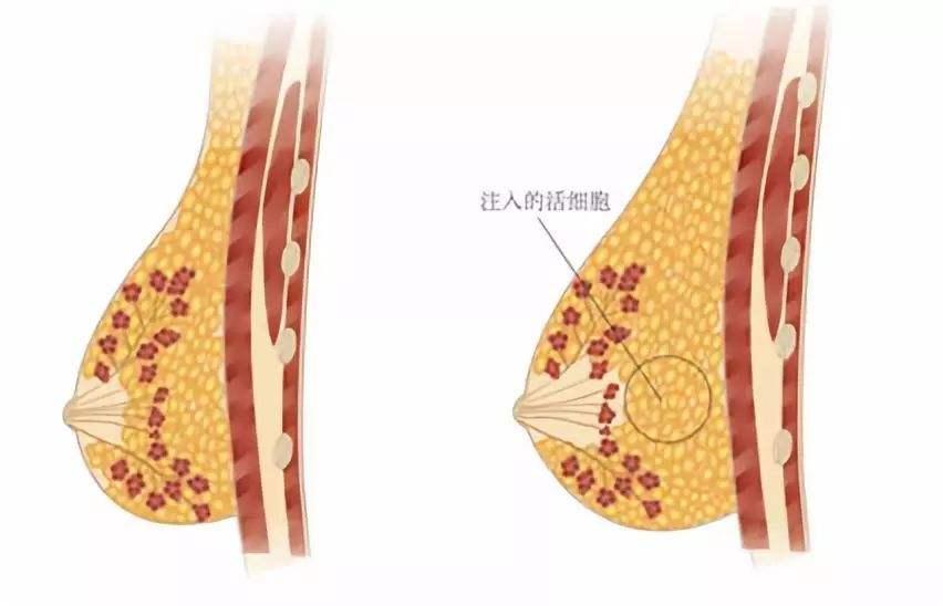 上海自体脂肪隆胸的材料安全吗