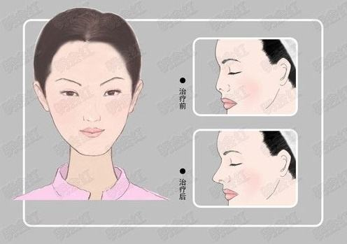 硅胶假体隆鼻做得效果怎么样