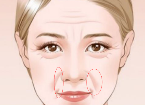 注射除皱针的危害和副作用都有哪些