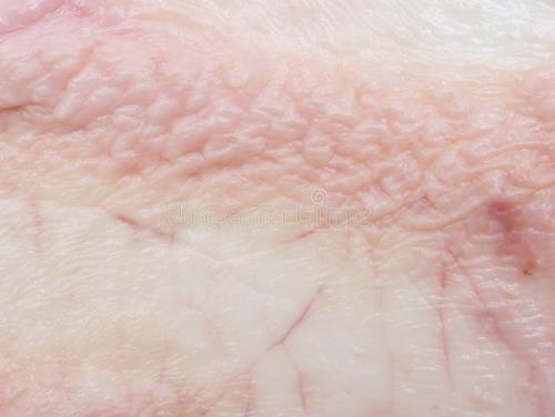 鸡皮肤怎么来有效消除