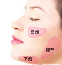 做一个面部吸脂手术的效果怎么样