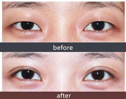 全切双眼皮恢复期一般是多久