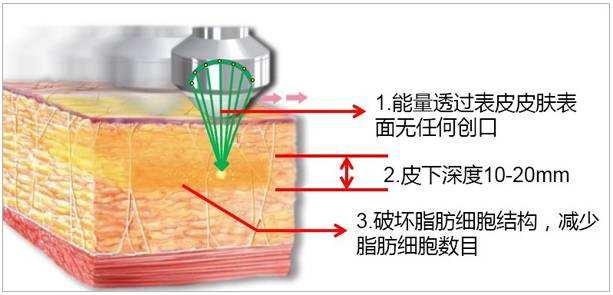 上海做大腿吸脂肪手术多少钱