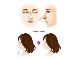 上海做注射隆鼻的效果好不好