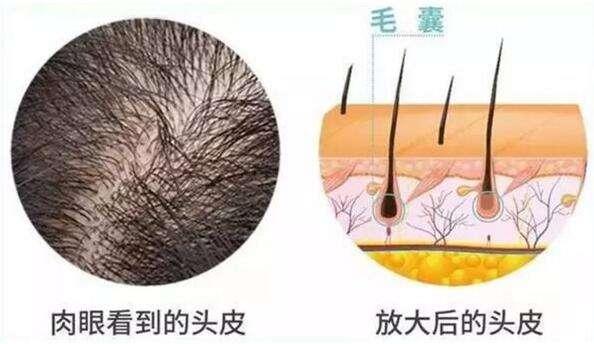 头发种植手术前后的注意事项有哪些
