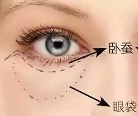 去眼袋手术报价上海一般是多少