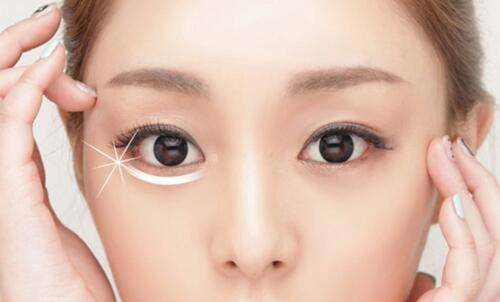 上海做激光去眼袋对眼睛有伤害吗