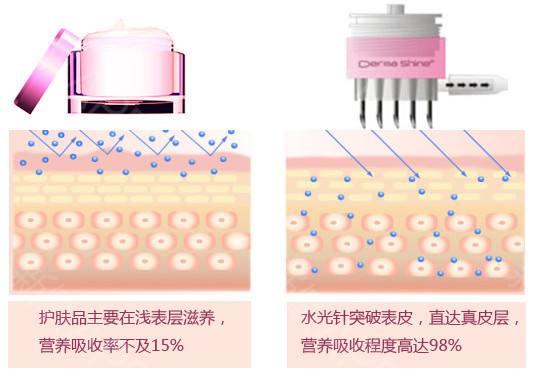 上海打水光针有什么不好的后遗症吗