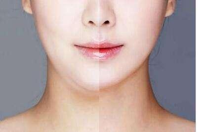 做面部吸脂抽脂瘦脸手术注意事项有哪些